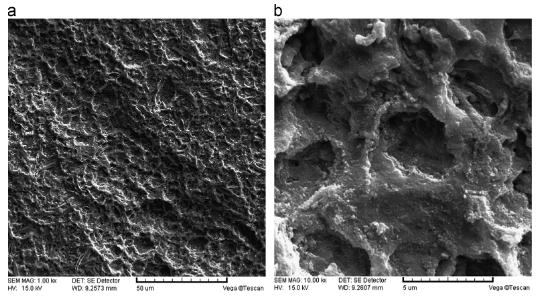 Ruthenium iridium coated anode